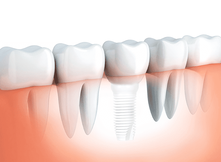conventional dental implants