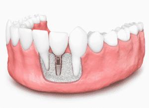 bone grafting for implants