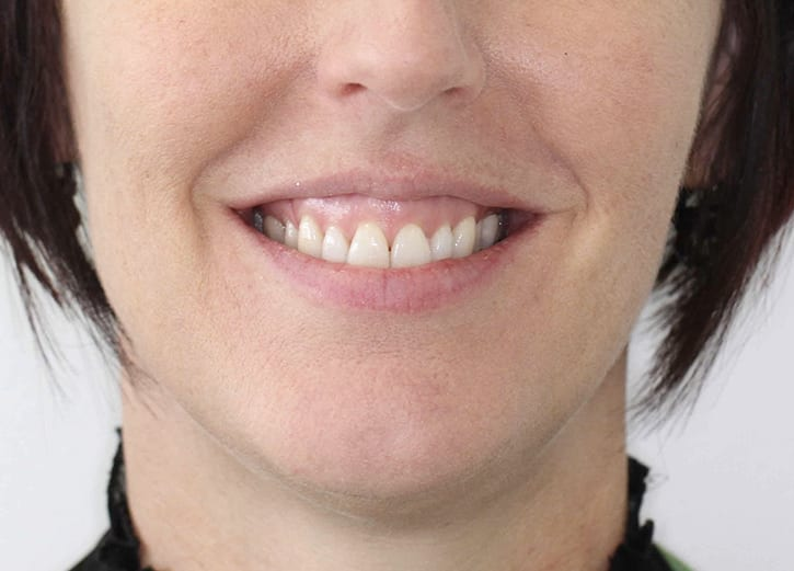 cosmetic dentistry gummy smile