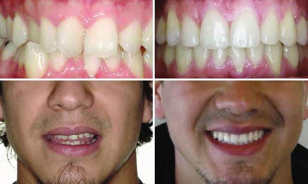 Invisalign Crossbite Before & After