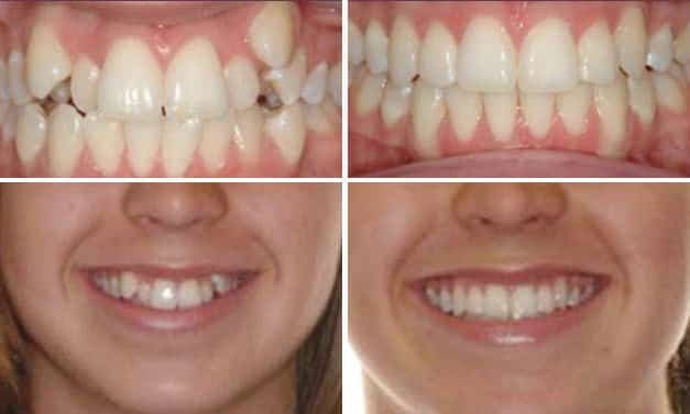 Invisalign Crowding Before & After