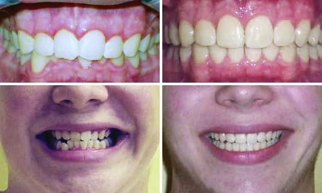 Invisalign Overbite Before & After