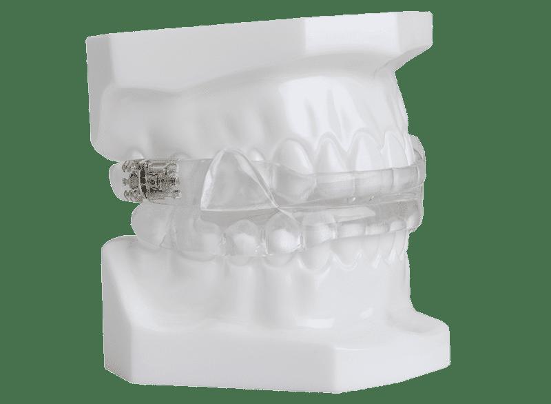 Mandibular Advancement Splint 2