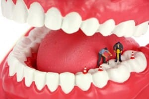 bridges implants dentures