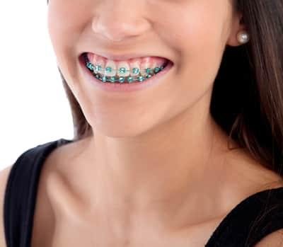 common complaints conventional braces