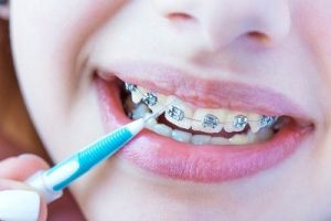 conventional braces questions answered