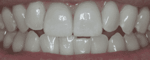 cosmetic dentistry options for improving the look for my smile