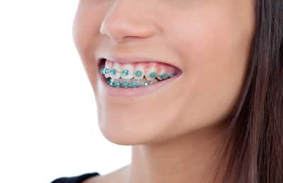 cost braces