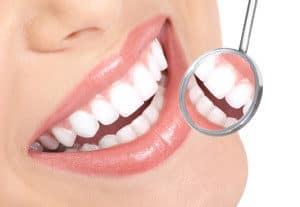difference pharmacy whitening kits dentist whitening