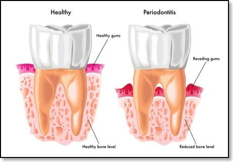 health problems linked to poor oral hygiene