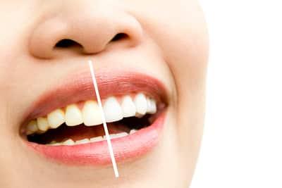 how long do teeth whitening effects last