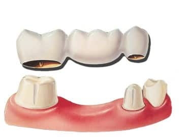 im looking get bridge replace tooth different types choose