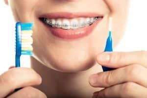 keep teeth clean wearing braces