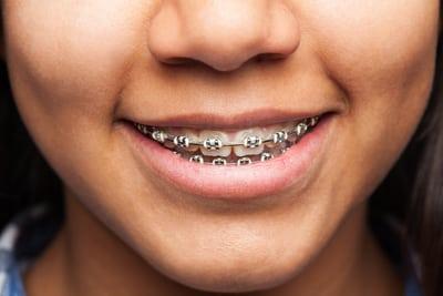 long child need wear braces