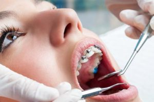 orthodontic treatment dentist vs specialist orthodontist