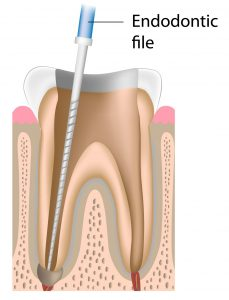 risk of broken files in root canal treatment