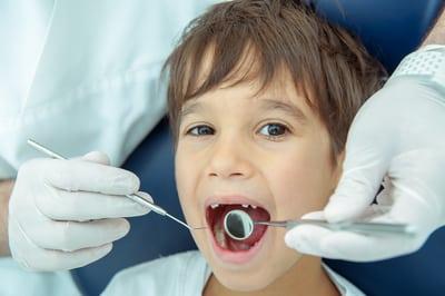 role fissure sealants childrens teeth