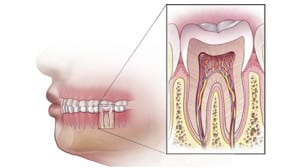 root canal treatment involve