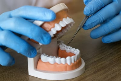 types dental crown available