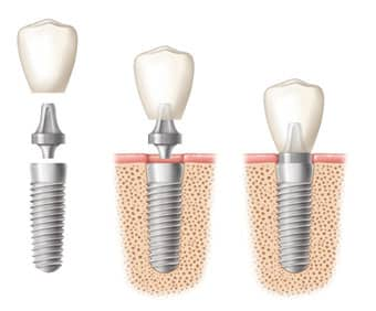 what are the different types of dental implants