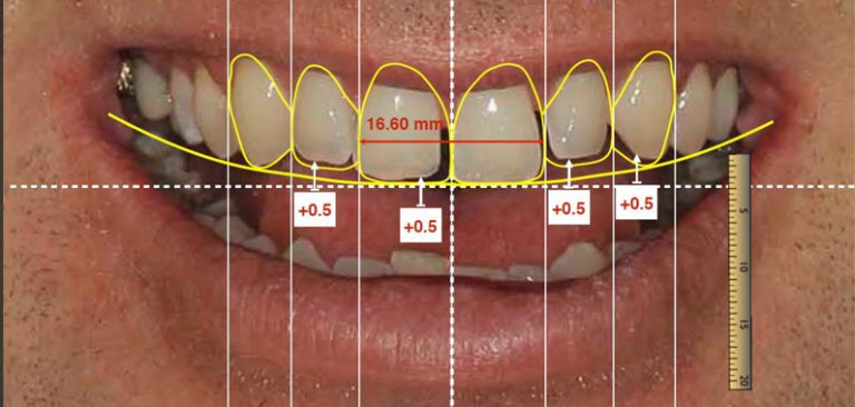 whats new in cosmetic dentistry