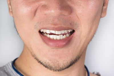 will cracked tooth treated