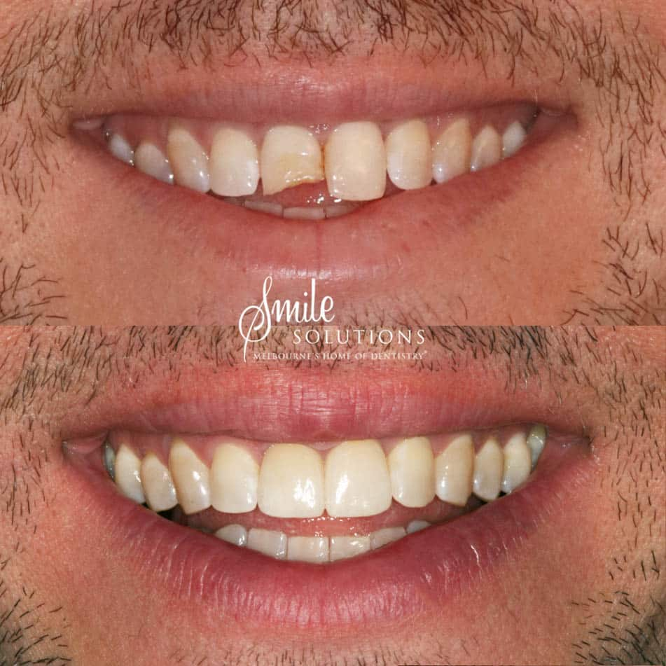Two Front Porcelain Crowns Veneers
