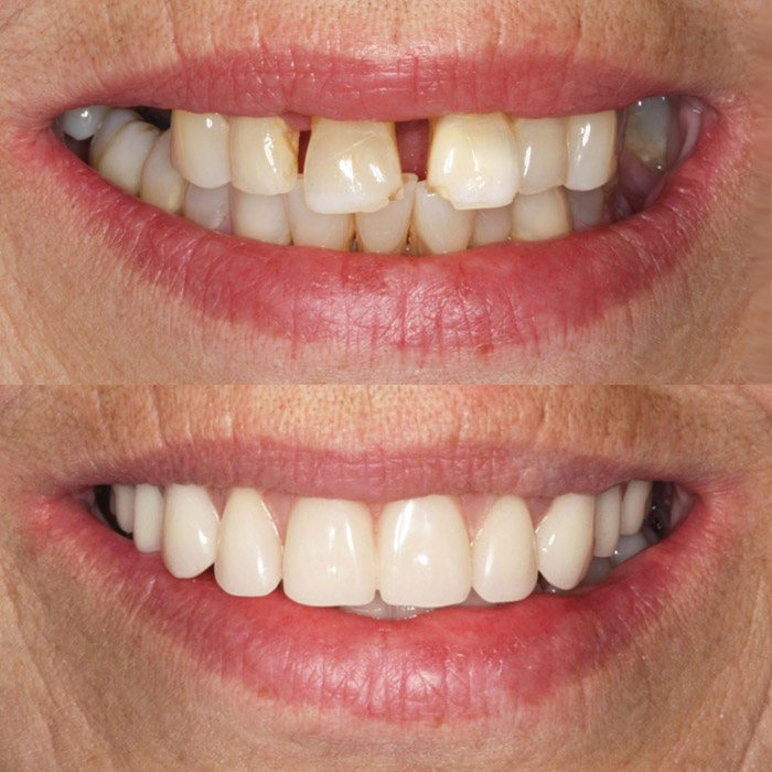 Teeth in 3 Days Smile Makeover Before & After