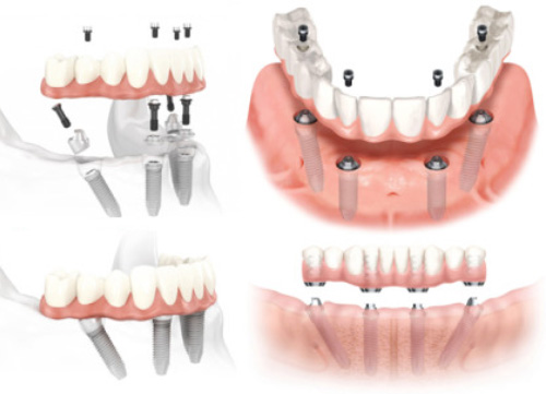 Teeth in 3 Days Smile Makeover